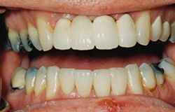 Tooth decay treatments by Wilmington dentists at Wahl Family Dentistry